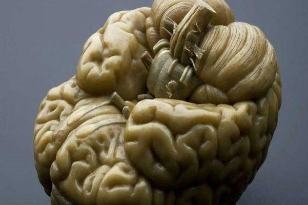 ریکاوری آسیب مغزی ترومایی در ظروف آزمایشگاهی